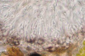 Bacidia herbarum