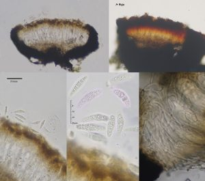 Alyxoria variiformis